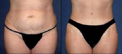 plastie abdominale avant apres