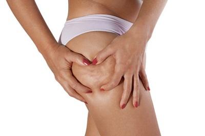 La Cellulite Adipeuse : Qu'est-ce qu'il faut connaître ?