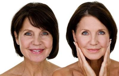 chirurgie esthetique pour femme