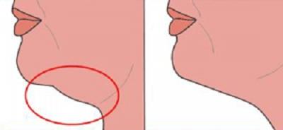 Zoom sur la liposuccion du cou : L'aspiration de la graisse du bas du visage