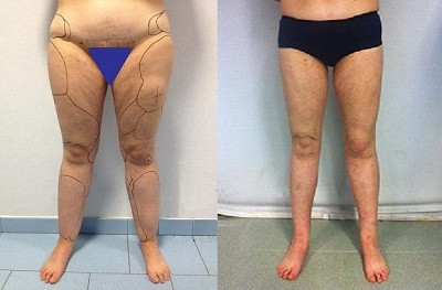 liposuccion jambes