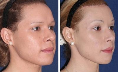 liposuccion du visage avant apres