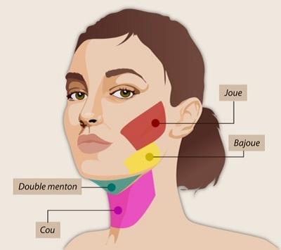 Liposuccion du visage : Qu'est-ce que la lipoaspiration faciale ?