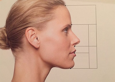 profiloplastie