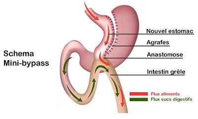 Mini bypass : Qu'est-ce qu'il faut savoir sur cette opération gastrique ?