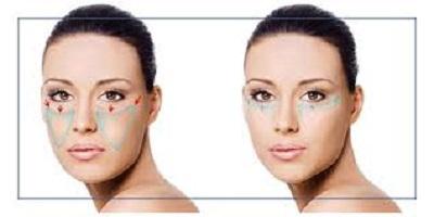 Lifting endoscopique : Rajeunissement du visage peu invasif