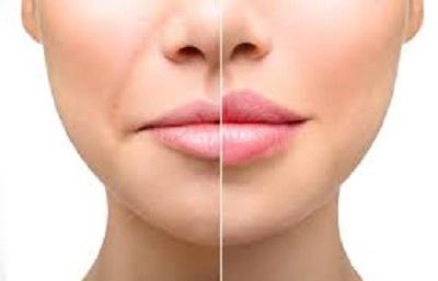 Lip lift : Tout savoir sur le lifting des lèvres