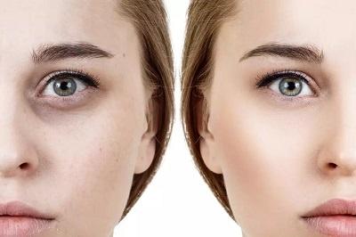 Comment enlever les cernes sous les yeux ? Les traitements