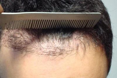 Combien de greffes de cheveux est-il possible de faire ?