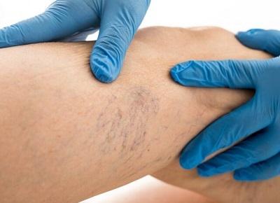 Comment soigner des varices sans chirurgie?
