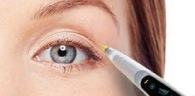 operation des paupieres au laser