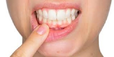 gingivectomie tunisie