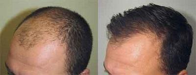 Greffe cheveux Tunisie : Implants capillaires