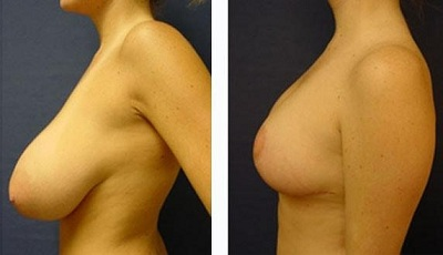 reduction mammaire en tunisie