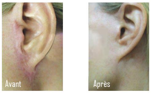 traitement des cicatrices au laser